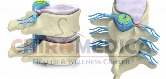 chiropractica - terapie alternativa hernia de disc