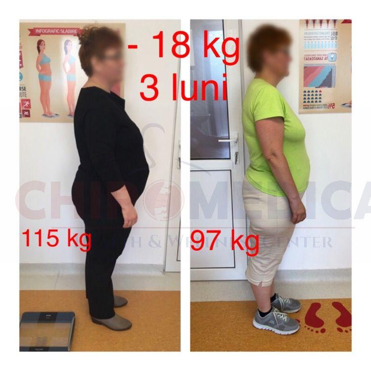 dieta cluj chiromedica nutritie