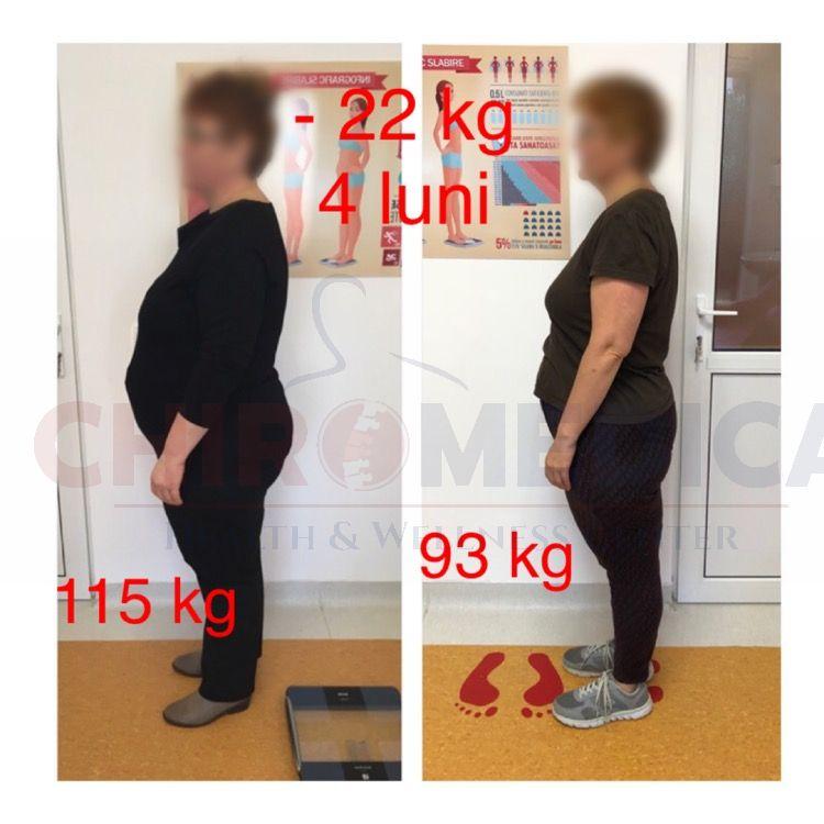 dieta slabit cluj chiromedica