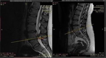 tratament chiropractic hernie de disc chiromedica cluj
